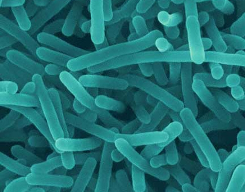 LISTERIOSIS-INFORMATION EDUCATIONAL MATERIAL