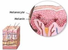 melanom 1