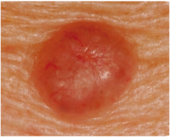 basal cell carcinoma 1