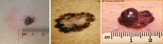melanom 2