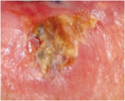 squamous cell carcinoma 2
