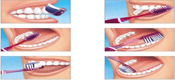 oral 3